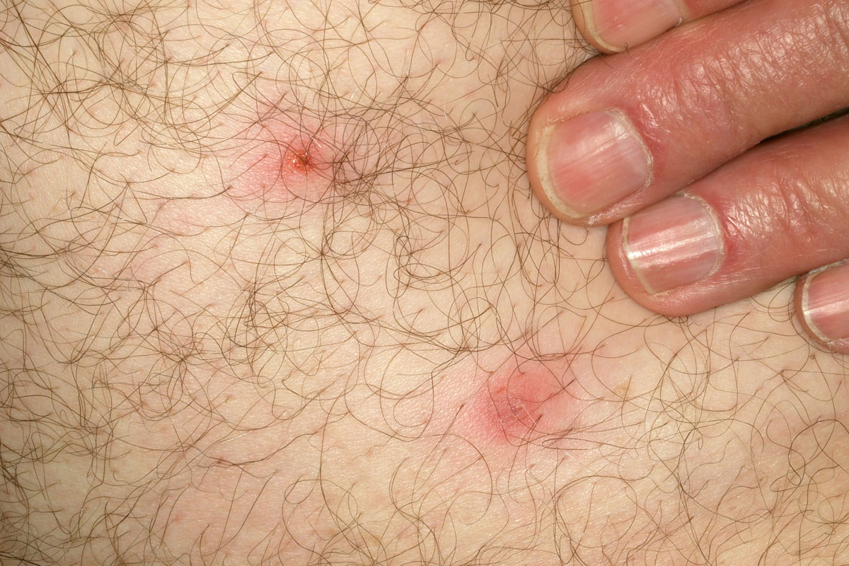 infected tick bite bing images